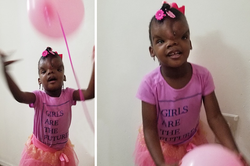 Zoey, who had surgery for a frontal encephalocele, plays with a pink balloon after her surgery