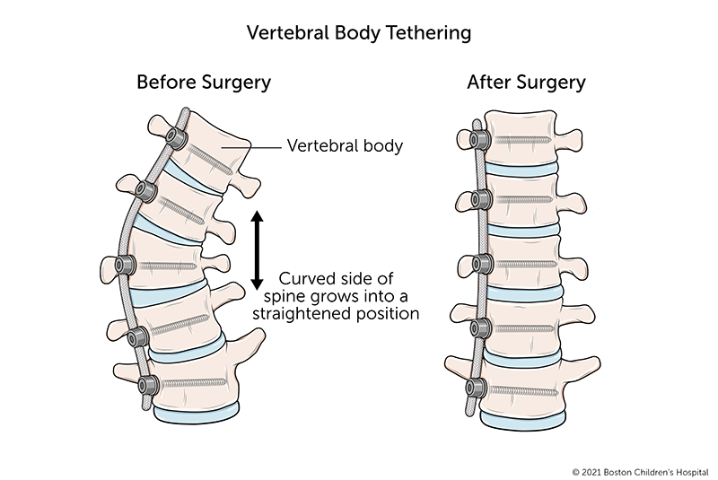 A before and after illustration of vertebral body tethering for scoliosis. Before the surgery, several vertebrae are shorter on one side than the other. After surgery to attach the tether to the curved side of the spine, the vertebrae grow into even shapes and the spine becomes straighter.