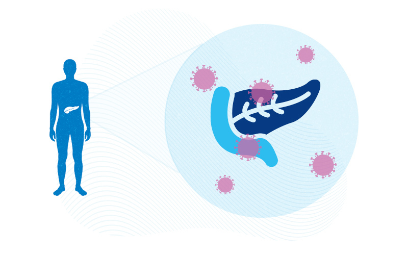 illustration of a pancreas surrounded by COVID19 virus particles