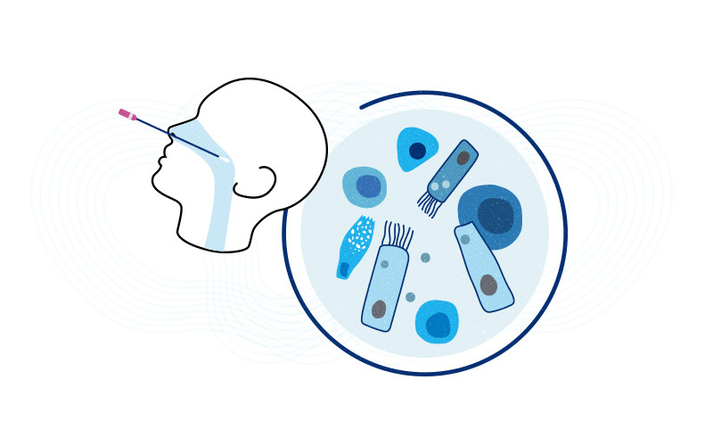 COVID-19 nasal swab with different cell types in the nasopharynx