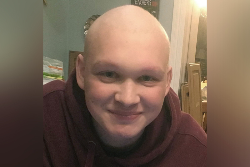 liam with his head shaved after treatment for liver cancer